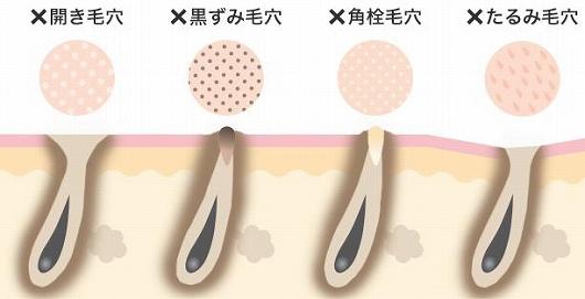 毛穴の種類